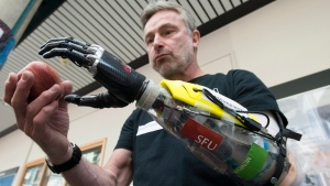 Danny Letain uses a bionic hand to help him eat an apple at Simon Fraser University in Burnaby, B.C. Tuesday, May 3, 2016. In October, the former Paralympian will test a new robotic prosthesis at the world's first cyborg Olympics in Zurich. (Jonathan Hayward/The Canadian Press)